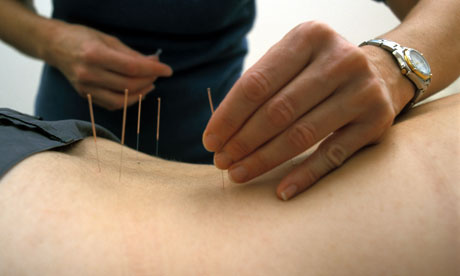 ACU & ACUPUNCTURE YOGA CLINIC