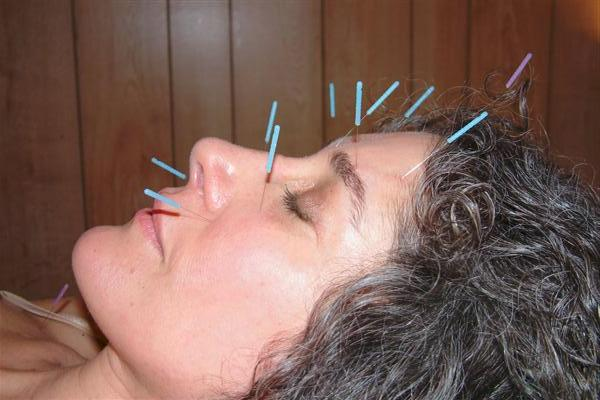 PSYCHO ACUPUNCTURE & MEDICARE CENTRE